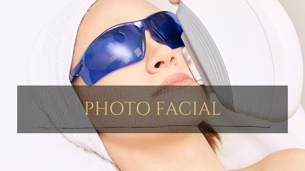 photofacial